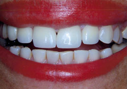 actual patient properly aligned teeth after dental treatment