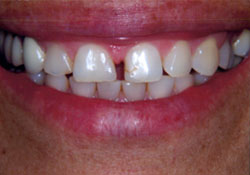 actual patient teeth gaps before dental treatment