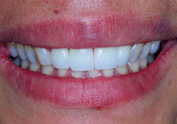 actual patient bright teeth after dental treatment