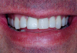 actual patient healthy teeth after dental treatment