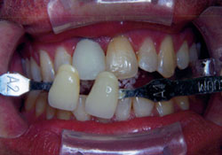 actual patient decayed teeth before dental treatment