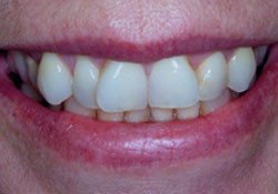 actual patient uneven teeth before dental treatment