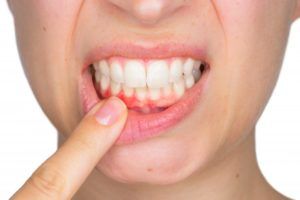 Woman with gum disease in Houston pointing to red gums